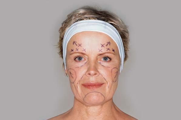 Cirurgia plástica aos 50 anos